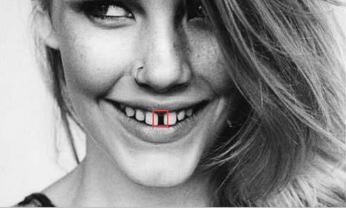 牙齿稀疏缝隙大在面相上运势吉凶