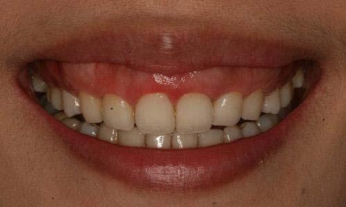 面相看一笑露牙龈的女人的婚姻感情运势分析