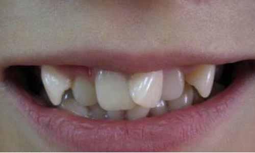 牙齿歪斜七上八下鬼齿的人面相特点