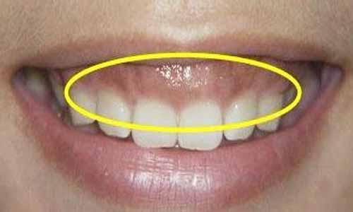 面相学分析一笑露牙龈上嘴唇人中看不到了的人面相特点