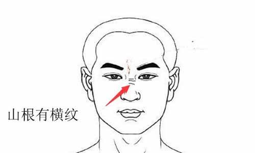 两眼间鼻梁山根部位有横纹的面相运势情况