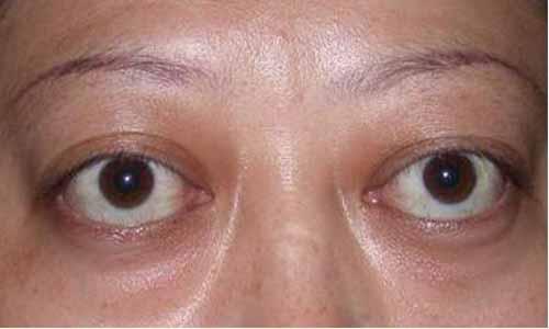眼睛外凸的人的面相性格分析