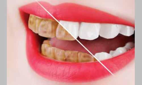 牙齿变得焦黄的人面相命运运势总结分析