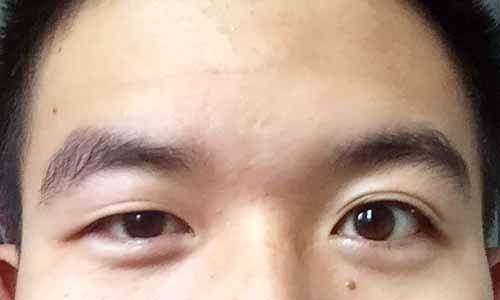 一眼大一眼小的雌雄眼的人面相分析